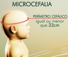 Governo registra 739 suspeitas  de microcefalia (Tv Globo)