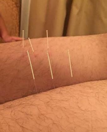 Tianjin Quanjian departamento médico acupuntura medicina chinesa (Foto: Tianjin Quanjian/ Divulgação)