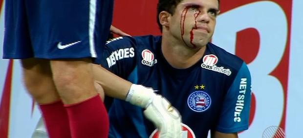 marcelo lomba; goleiro do bahia (Foto: Imagens/TV Bahia)