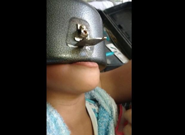 Familiares do menino não conseguiam tirar a panela e chamaram ajuda  (Foto: reprodução/Facebook)
