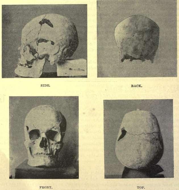 Possível crânio de Sanakht (Foto: Wikimedia Commons)