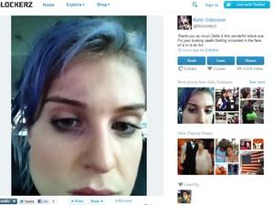 Foto publicada por Kelly Osbourne, com olho roxo, em seu perfil no Twitter (Foto: Reprodução)