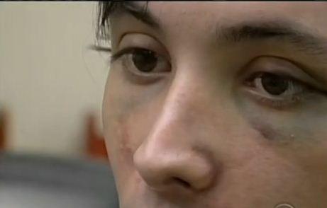 Rapaz diz que foi agredido em boate de SC (Foto: Reprodução RBS TV)