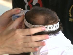 Quadro 'Meu Bebê' mostra importância do tratamento de crianças com microcefalia (Foto: Reprodução/TV Mirante)