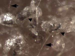 As setas mostram os fios de cabelo que tiveram origem nas células-tronco epiteliais criadas pelos cientistas (Foto: Ruifeng Yang/Perelman School of Medicine/University of Pennsylvania/Divulgação)