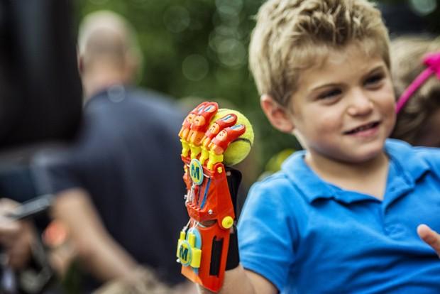 Menino é primeira criança francesa a receber prótese feita com impressora 3D (Foto: AFP Photo/Jeff Pachoud)