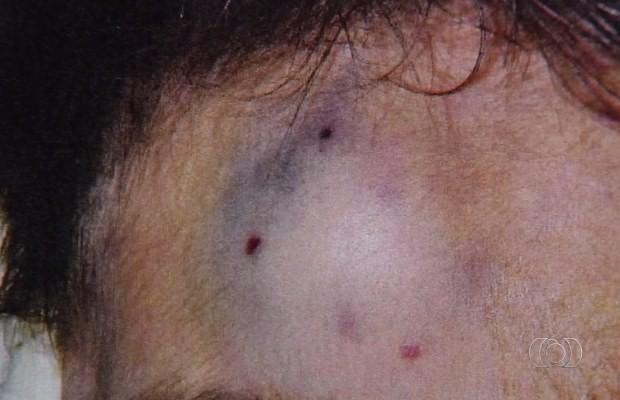 Foto mostra hematoma na cabeça de David Lucas em Goiânia, Goiás (Foto: Reprodução/ TV Anhanguera)