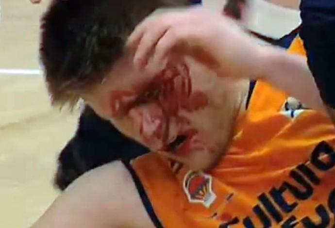 Basquete - Valencia x Zaragoza jogador machucado (Foto: Reprodução)