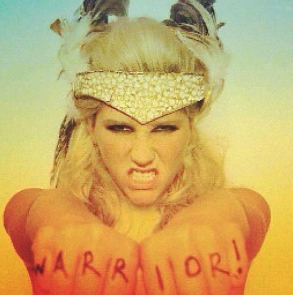 Kesha (Foto: Reprodução/Instagram)