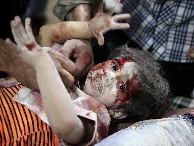 Criança recebe atendimento em hospital após ataques aéreos em área dominada por rebeldes em Damasco, na Síria (Foto: Bassam Khabieh/Reuters)