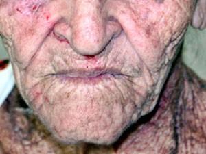 Idosa sofreu ferimentos no rosto (Foto: Rafael Amaral/Site Rastro 101)