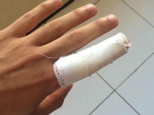 Estudante teve dedo lesionado em agressão de gerente (Foto: Divulgação)