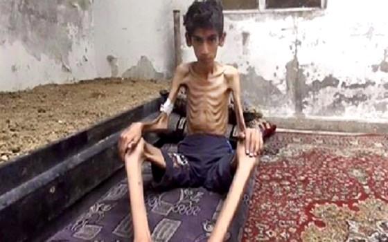 Sírios morrem de fome em Madaya, cidade sitiada (Foto: AP)