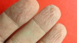 Dedos enrugados (Foto: Arquivo)