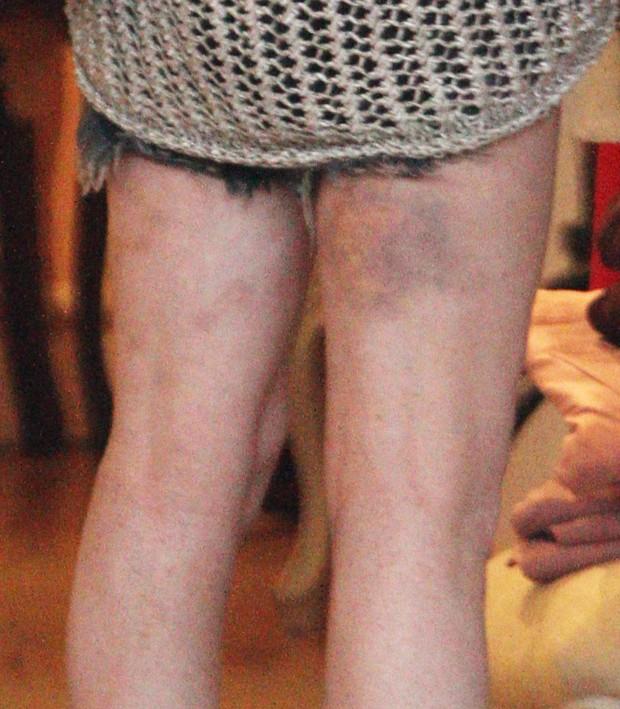 Detalhe da mancha roxa na perna de Lindsay Lohan (Foto: Reprodução / Agência X17)