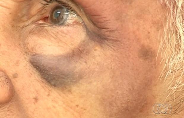 Resultado de imagem para idoso é agredido no rosto