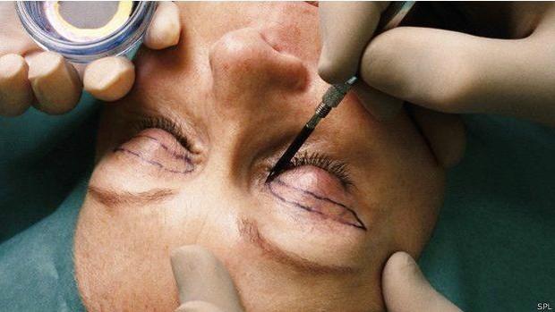 Pessoas que sofrem de TDC costumam fazer várias cirurgias plásticas  (Foto: SPL/BBC)