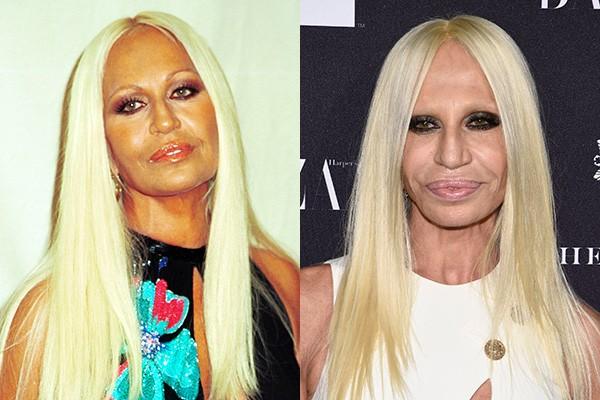 Donatella Versace tem presença constante em listas de transformação. A estilista de 58 anos teve vários procedimentos feitos em seu rosto - e há boatos de que ela tenha passado por sessões de bronzeamento. (Foto: Getty Images)