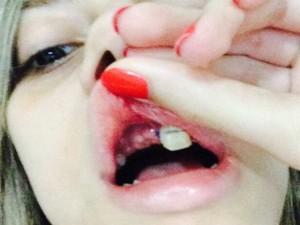Larissa perdeu dentes no acidente (Foto: Larissa Magalhães / Arquivo Pessoal)