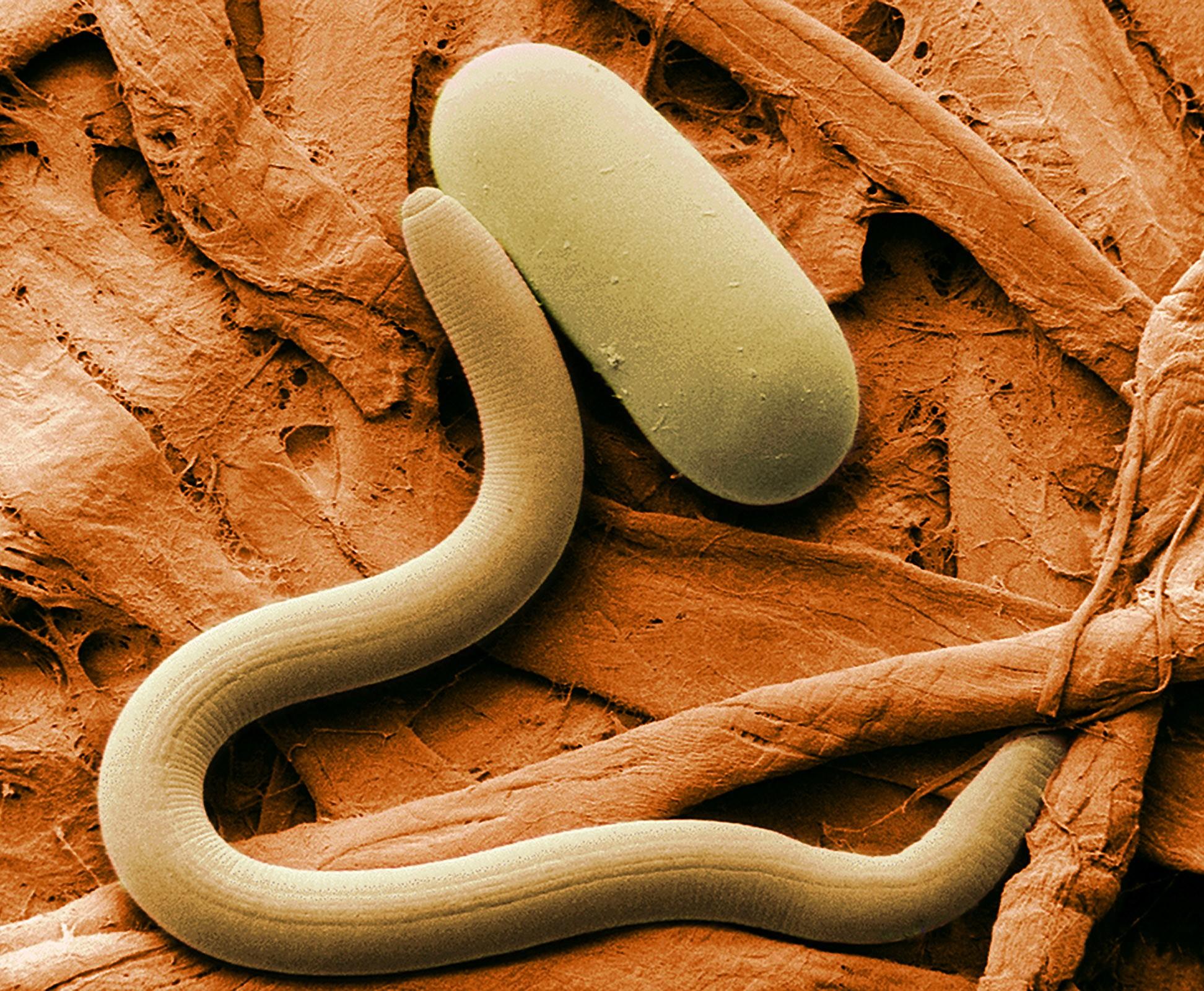 Vermes como este podem ajudar a detectar o câncer