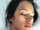 Ariadna mostra pontos no pescoço após cirurgia: 'Corpo guerreiro'