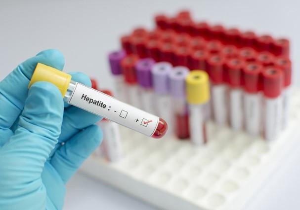 Hepatite: saiba como identificar a doença que mata mais do que a Aids