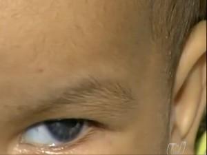 Bebê se recupera de transplante nas córneas (Foto: Reprodução/TV Anhanguera)