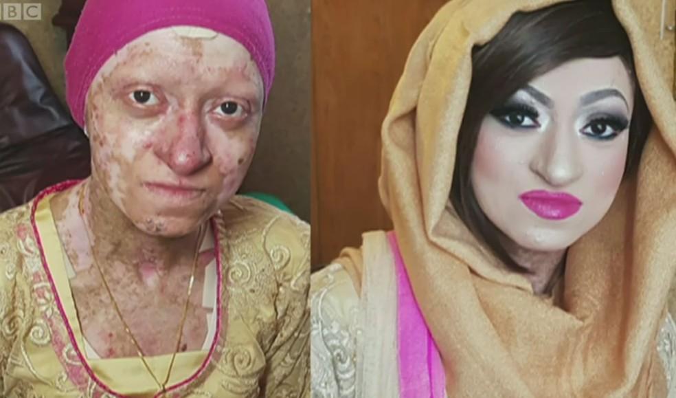 Resultado de imagem para A doença que deixa a pele tão frágil quanto a asa de uma borboleta