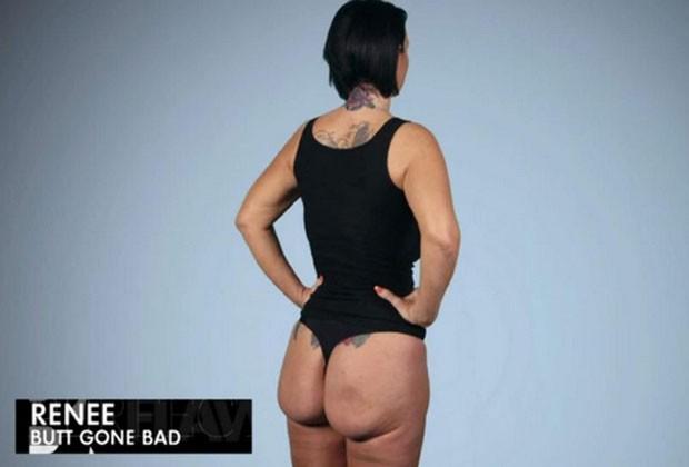 Mulher fica com 'bumbum quadrado' após aplicação de silicone dar errado (Foto: Reprodução/YouTube/E! Entertainment )