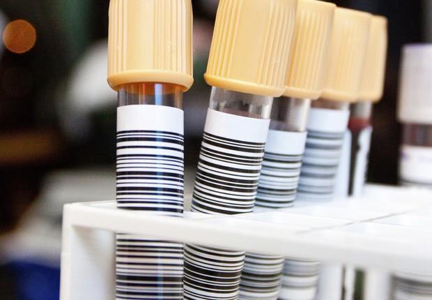 Exame de sangue; Exames; Laboratório; Médico; Doença; Doente; (Foto: ThinkStock)