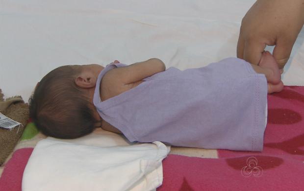 Mãe deu a luz aos cinco meses de gravidez (Foto: Amapá TV)