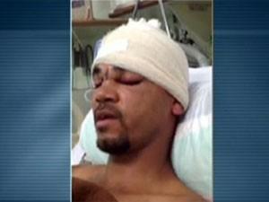 Operário que teve crânio perfurado por vergalhão no Rio segue internado no Miguel Couto (Foto: Reprodução TV Globo)