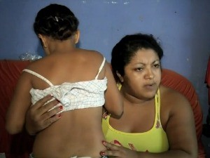 Segundo a m&#227;e, crian&#231;a apresenta sinais de agress&#227;o h&#225; seis meses (Foto: TV Verdes Mares/Reprodu&#231;&#227;o)