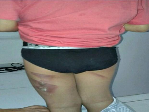 Fotos mostram o menino de cinco com queimaduras nas costas e nas pernas (Foto: Reprodução/TV Amazonas)