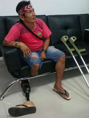 Marinaldo diz que usará a prótese para pescar e caçar (Foto: Natália de Oliveira/G1)