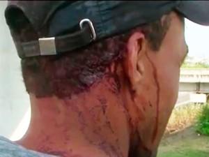 Vítima da pedrada não quis se identificar (Foto: Reprodução/TV Subaé)