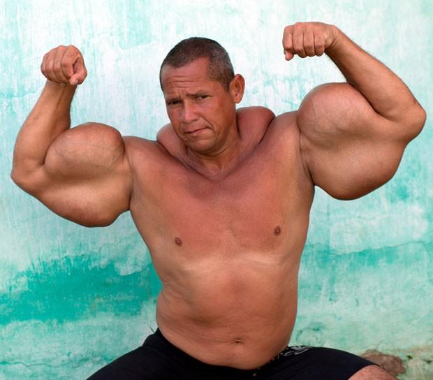 Foto distribuída pela agência Barcroft mostra Arlindo de Souza, de 43 anos, que injeta uma mistura de óleo mineral e álcool para aumentar o volume nos braços (Foto: Maria Andrade/Barcroft Media/Other Images)
