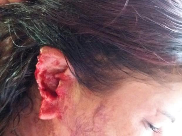 Jovem teve parte da orelha arrancada durante briga (Foto: Divulgação/Polícia Civil)