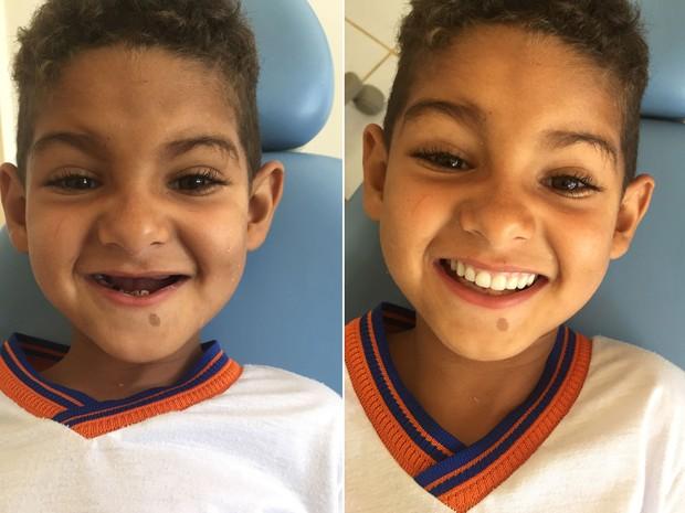 Menino dentes 01 (Foto: Amando Mattos/Arquivo pessoal)