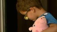 Retirada da bolsa de colostomia de menino de 4 anos completa uma semana