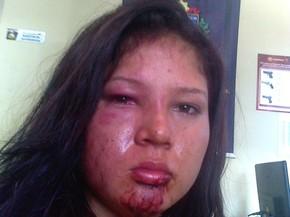 Jovem foi levada à delegacia ferida (Foto: Arquivo pessoal/)