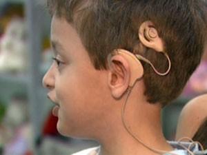 Clínica de Pouso Alegre implanta o ouvido biônico.  (Foto: Reprodução EPTV)