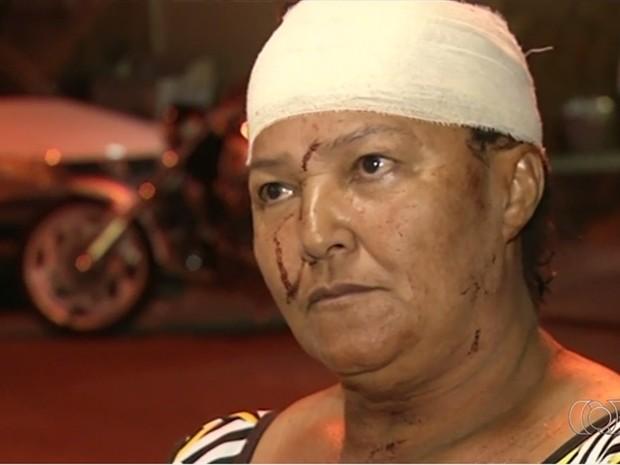 Dona de casa Malvina Sampaio, 62, foi uma das atropeladas por caminhão, em Anápolis, Goiás (Foto: Reprodução/TV Anhanguera)