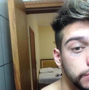 Lucco mostra olho roxo (Foto: Arquivo Pessoal)
