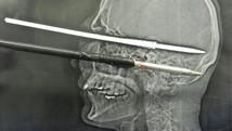 Homem se fere com arpão e sobrevive (Pedro Azzi)