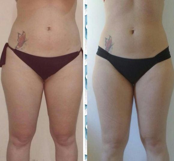Antes e depois (Foto: Reprodução Instagram)