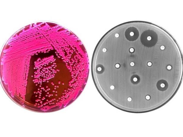 Colônias de E. coli (à esquerda) e antibiograma da bactéria (à direita) (Foto: FAPESP/Divulgação)