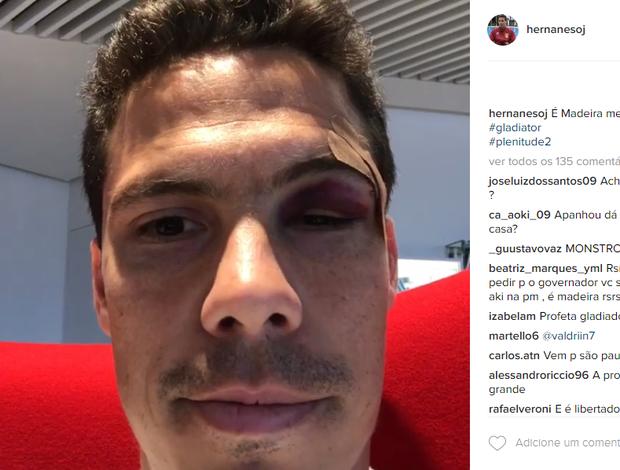 """BLOG: Com corte no supercílio e lesão no tornozelo, Hernanes mostra marcas de """"batalha"""""""