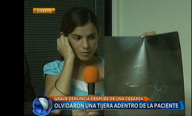 Pinça foi esquecida no corpo de Clara depois que ela passou por uma cesárea no dia 15 de fevereiro (Foto: Reprodução/Telefe)