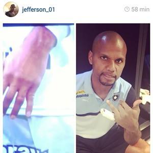 Jefferson Botafogo dedo machucado (Foto: Instagram)